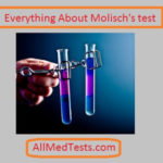 Molisch's Test, Principle and other Facts
