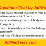 Serum Creatinine Test By Jaffe's Method.