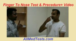finger to nose test