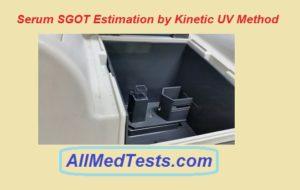 serum sgot test
