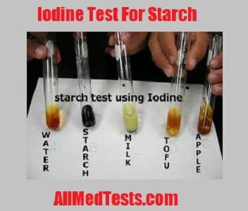 iodine test for starch its principle reagents procedure etc
