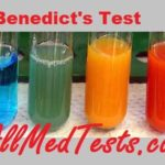 Benedict's test and Reducing Sugar Analysis