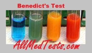 Benedict's test results