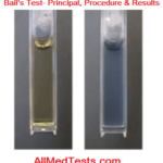 Bial's Test: Principle, Reagents, Procedure and Results
