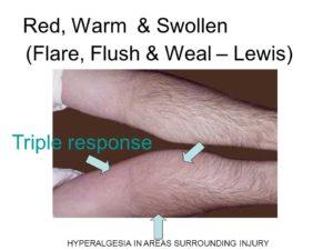 Response of Skin To Blunt Injury