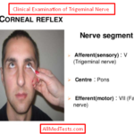 Clinical Tests For Examination Of Trigeminal Nerve (5th Cranial Nerve)