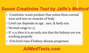 serum creatinine test