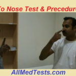 Finger To Nose Test And Its Procedure + Video