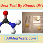 Serum Urea Test By Kinetic UV Method