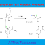 Lactate Dehydrogenase Test: Principle And Procedure