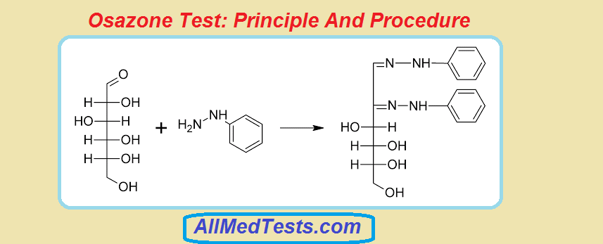 laboratory protocol for carbohydrates Enzyme assay protocol  fluorometric and absorbance protocols have already been created for hofmockel laboratory use and  enzyme assay is set up and should be .